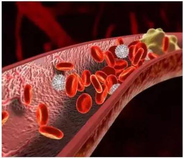 99%的血栓无征兆!记住一个字,让你远离这个游走血管的幽灵